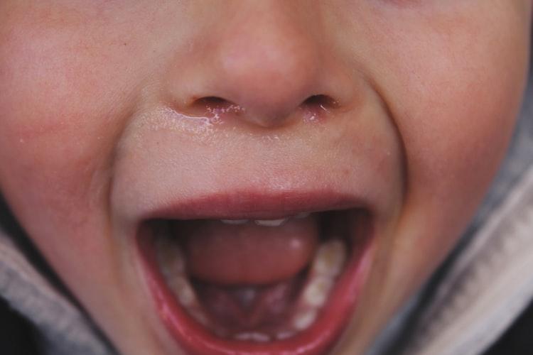 Remedii naturale pentru nas înfundat şi durere în gât la copii